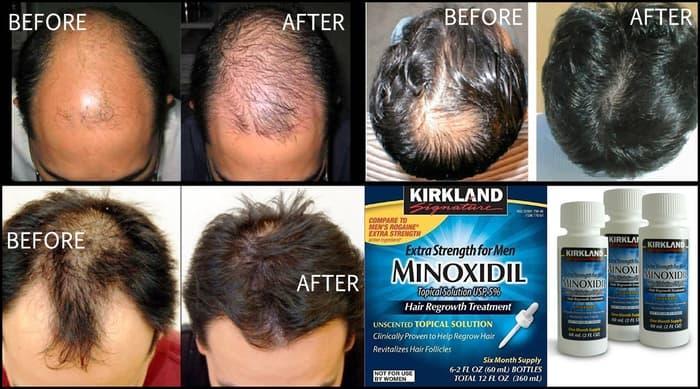 wypadanie włosów po minoxidil